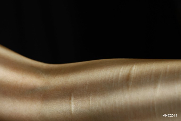 Arm detail